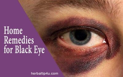 Home Remedies for Black Eye & Stages of Healing