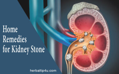 Home Remedies to Remove Kidney Stones at Home