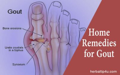 Home Remedies to Get Relief from Gout Naturally